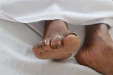 Bệnh nhân có tiền sử bị bệnh đái tháo đường type II, biến chứng loét ngón 2 bàn chân phải mà vẫn làm việc đồng áng và tiếp xúc với bùn đất mà không có phương tiện bảo hộ nên đã bị vi khuẩn Burkholderia pseudomallei xâm nhập qua vết loét.