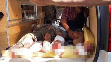 Người dân Syria bị thương do các cuộc bắn pháo của quân đội Thổ Nhĩ Kỳ ngày 18/10.