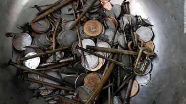 Những vật thể kim loại được tìm thấy trong bụng Maksood Khan, 28 tuổi.