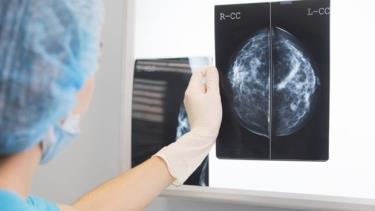 Phim chụp X-quang tuyến vú