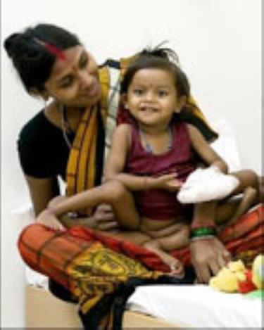 Bé Lakshmi trước cuộc phẫu thuật.