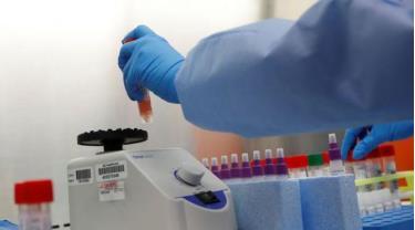 Mỹ áp dụng thử nước bọt để phát hiện virus SARS-CoV-2. Ảnh minh họa