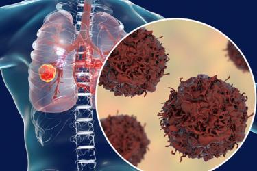Ung thư phổi rất khó phát hiện sớm do dấu hiệu khởi phát nghèo nàn, chụp Xquang thường không phát hiện được khối u kích cỡ nhỏ.
