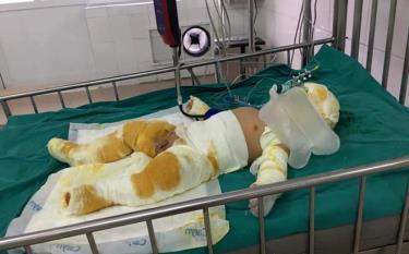 Cháu Nguyễn Hải Nam, con trai anh Mạnh bị bỏng nặng, đã được chuyển về Viện Bỏng Trung Ương