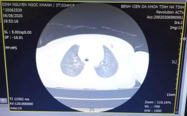 Hình ảnh dị vật thông qua chụp CT- Scanner của bệnh nhi K.