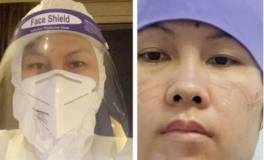 Điều dưỡng Vũ Thị Hồng, Trung tâm phẫu thuật đại trực tràng - TSM, Bệnh viện Việt Đức.