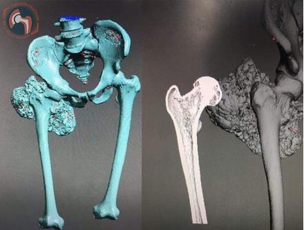 Các kỹ sư tạo ra mô hình xương nhân tạo in 3D từ bản quét cắt lớp vi tính của bệnh nhân